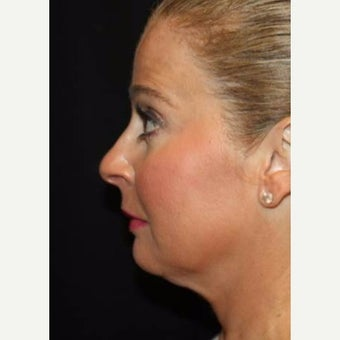 45-54 year old woman treated with Kybella before 2544122