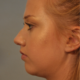18-24 year old woman treated with Nose Surgery before 3320836