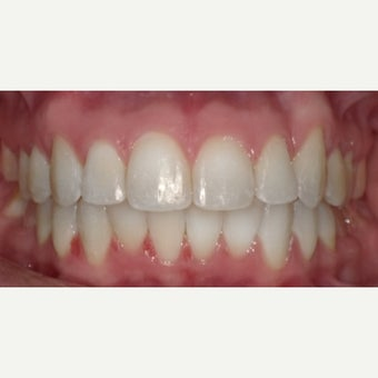 25-34 year old woman treated with Damon Braces after 3470355
