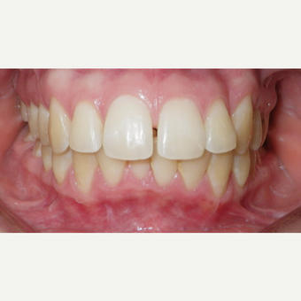 25-34 year old woman treated with Damon Braces before 3470355