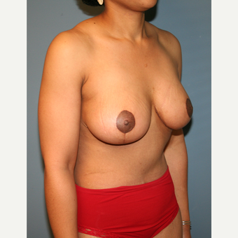 25-34 year old woman treated with Mommy Makeover after 3512014
