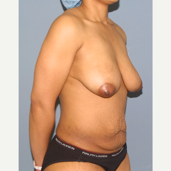 25-34 year old woman treated with Mommy Makeover before 3512014