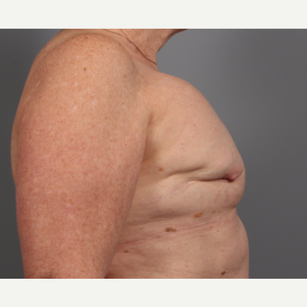 65-74 year old woman treated with Breast Reconstruction Revision before 3371057
