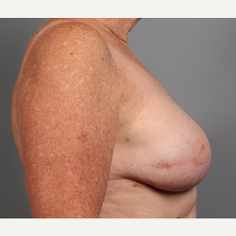 65-74 year old woman treated with Breast Reconstruction Revision after 3371057
