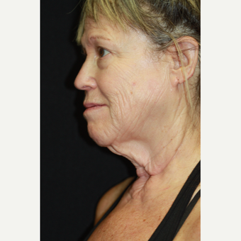 63 year old woman treated with Laser Surgery