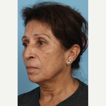 55-64 year old woman treated with Age Spots Treatment after 3321486
