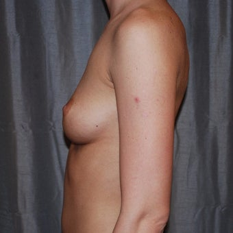 25-34 year old woman treated with Breast Augmentation 1958552