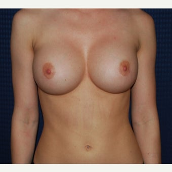 25-34 year old woman treated with Breast Augmentation after 1958552
