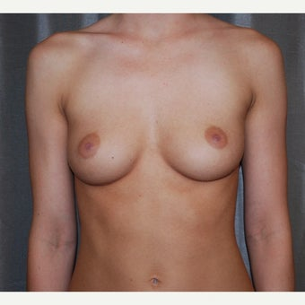 25-34 year old woman treated with Breast Augmentation before 1958552