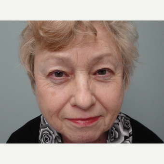 65-74 year old woman treated with Eyelid Surgery before 3823323