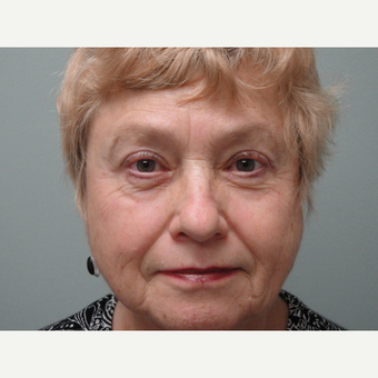 65-74 year old woman treated with Eyelid Surgery after 3823323