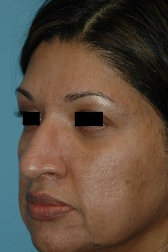 45-54 year old woman treated with Microneedling after 2875641