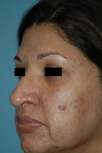 45-54 year old woman treated with Microneedling before 2875641