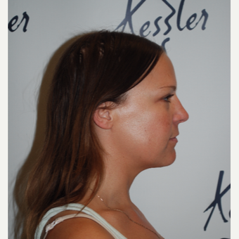 25-34 year old woman treated with Kybella after 3578211