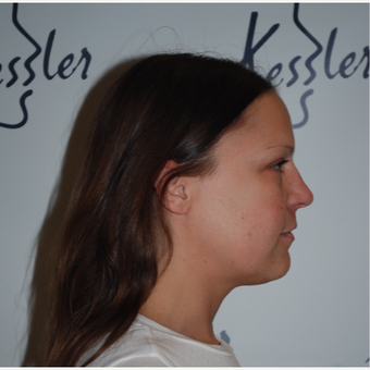 25-34 year old woman treated with Kybella before 3578211