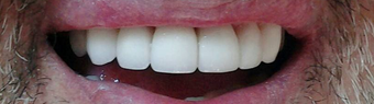 Smile Makeover with zirconium crowns after 1334204