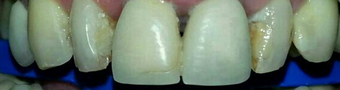 Smile Makeover with zirconium crowns before 1334204