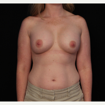 31 year old female with bilateral submuscular silicone implants placed through the underarm after 3522719