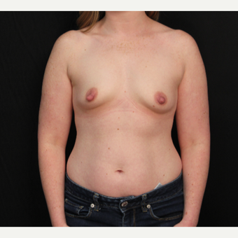 31 year old female with bilateral submuscular silicone implants placed through the underarm before 3522719