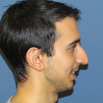 25-34 year old man treated with Rhinoplasty before 2087838
