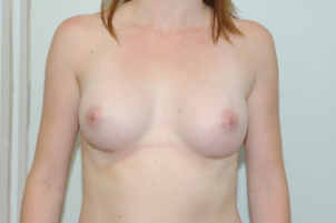 24 year old female underwent Breast augmentation after 3103559