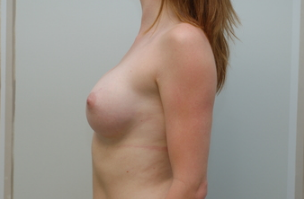 24 year old female underwent Breast augmentation 3103559