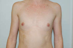 24 year old female underwent Breast augmentation before 3103559