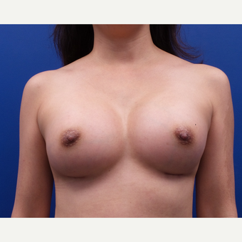 35-44 year old woman treated with Breast Augmentation after 3185129