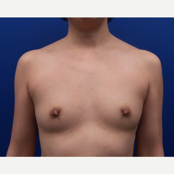 35-44 year old woman treated with Breast Augmentation before 3185129