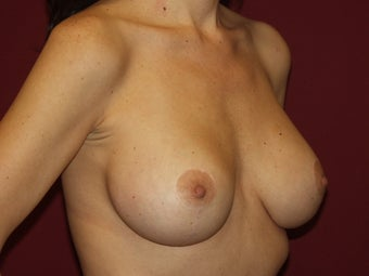 Lift with Breast Implants 722740