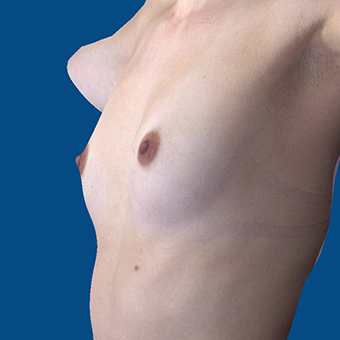 25-34 year old woman treated with Breast Augmentation before 3808700