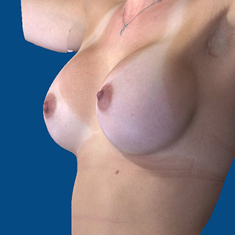 25-34 year old woman treated with Breast Augmentation after 3808700
