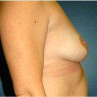 45 year old woman treated with Breast Lift with Implants before 3666157