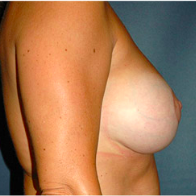 45 year old woman treated with Breast Lift with Implants after 3666157
