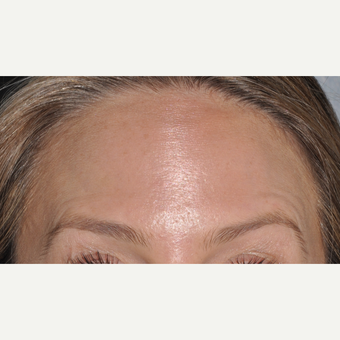 Botox to reduce forehead wrinkles after 3375093