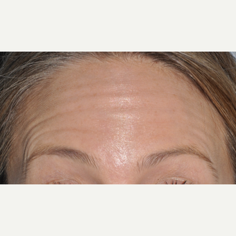 Botox to reduce forehead wrinkles before 3375093