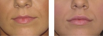 Volbella and Juvederm Lip fillers before 3093700