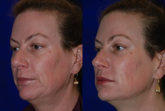 Liquid Facelift  before 1376655