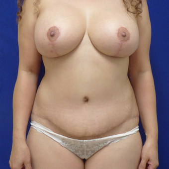 44 y.o. female–Mommy Makeover, Breast Lift w/ Silicone Style 15 421cc & Abdominoplasty (Tummy Tuck) after 3089183