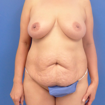 44 y.o. female–Mommy Makeover, Breast Lift w/ Silicone Style 15 421cc & Abdominoplasty (Tummy Tuck) before 3089183