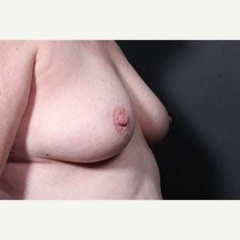 55-64 year old woman treated with Nipple Surgery