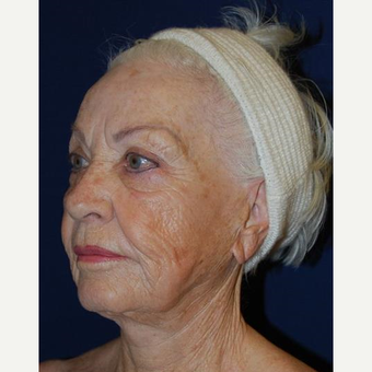 75 and up year old woman treated with Facelift before 3370702