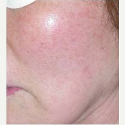 55-64 year old woman treated with Skin Rejuvenation after 3447802