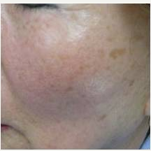 55-64 year old woman treated with Skin Rejuvenation before 3447802
