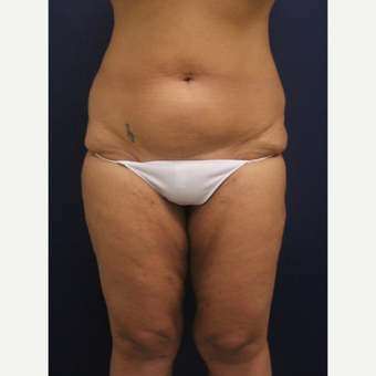 45-54 year old woman treated with Smart Lipo after 3237052
