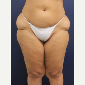 45-54 year old woman treated with Smart Lipo before 3237052
