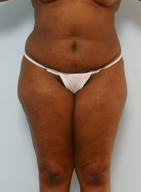 Tummy Tuck before 917980