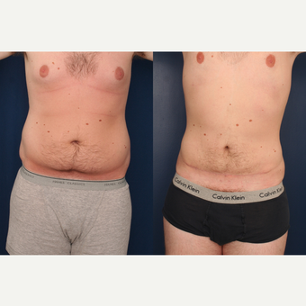 25-34 year old man treated with Male Tummy Tuck before 3699331