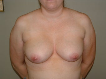 Breast Reconstruction before 735408