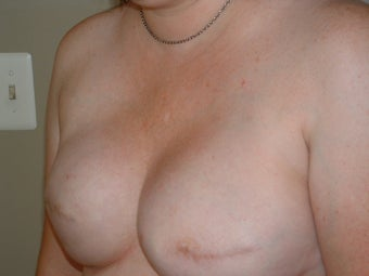 Breast Reconstruction 735408